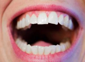 bolezni dlesni