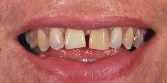 Dentalne ali zobne luske