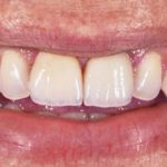 Boljši izgled zob z dentalnimi luskami